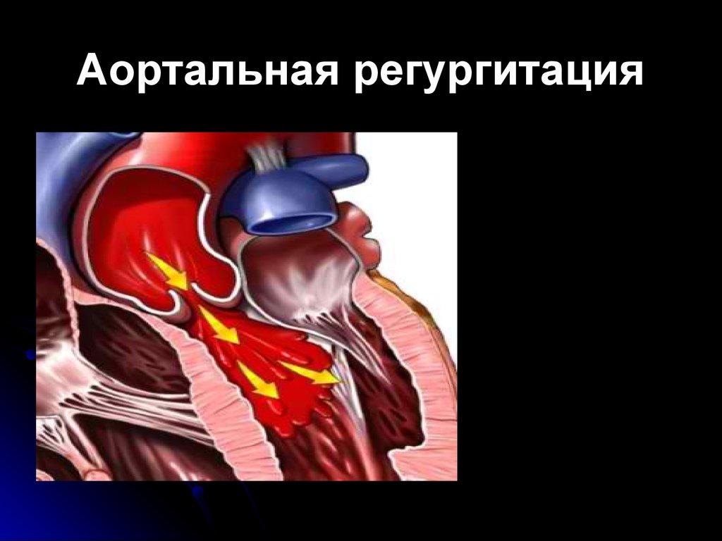 Стеноз.Симптомы и лечение.