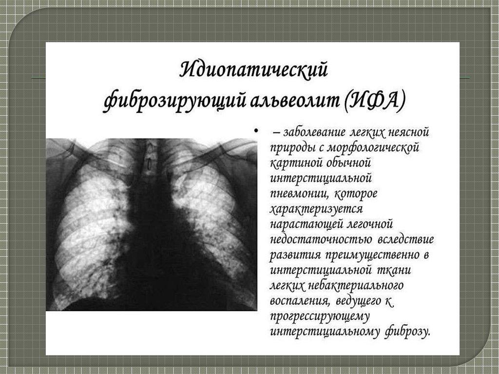 Фиброзирующий альвеолит, идиопатический, токсический, экзогенный аллергический альвеолит – симптомы, прогноз жизни