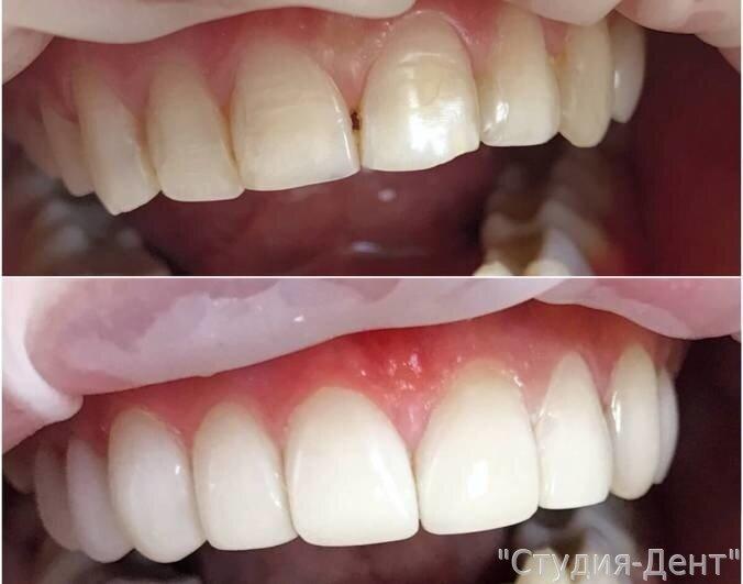 Продукты для зубов: полезные и вредные