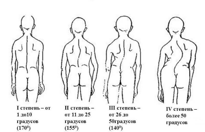 Лфк при кифозе грудного отдела позвоночника