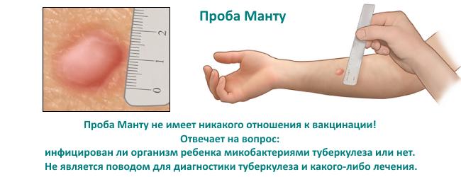 Какая должна быть реакция на манту у ребенка: норма и отклонения. как правильно измерить папулу