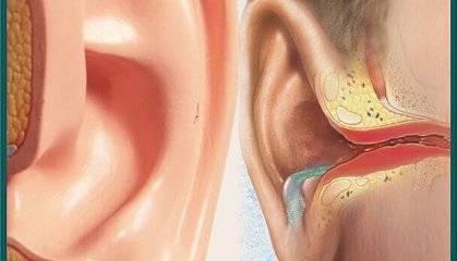 Осложнения острого воспаления среднего уха