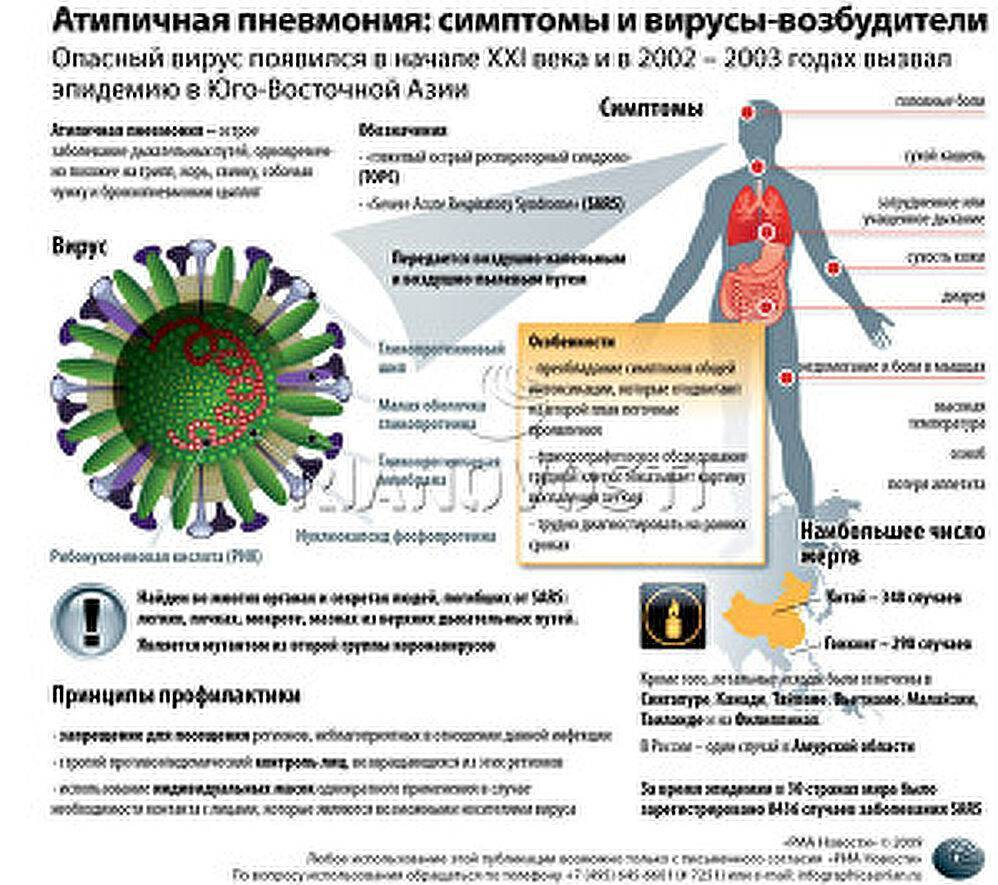 Симптомы и лечение атипичной пневмонии у взрослых