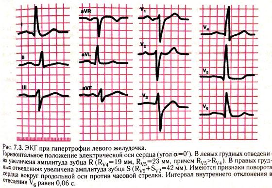 Как лечить гипертрофию левого желудочка сердца: чем опасна, какие симптомы