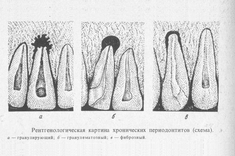 Верхушечный периодонтит