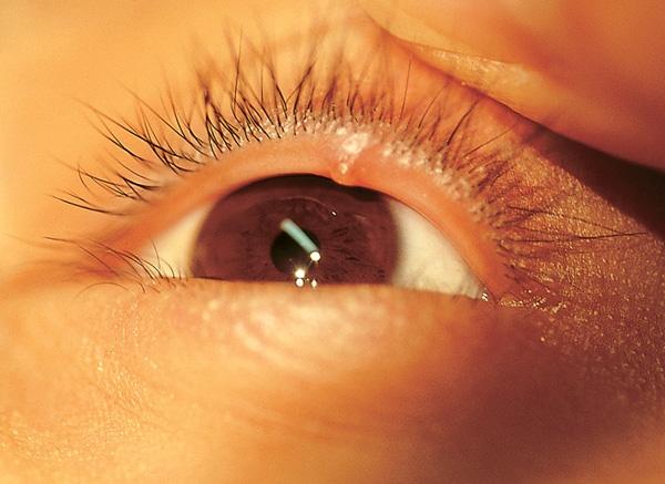Закупорка мейбомиевых желез глаза