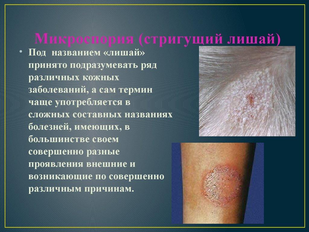 Микроспория гладкой кожи у детей и взрослых - пути заражения, проявления, методы диагностики и терапии