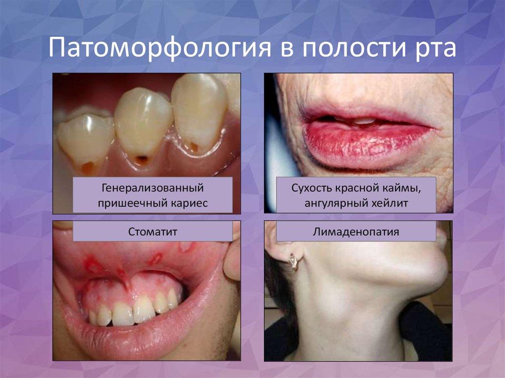 Лечение синдрома шегрена