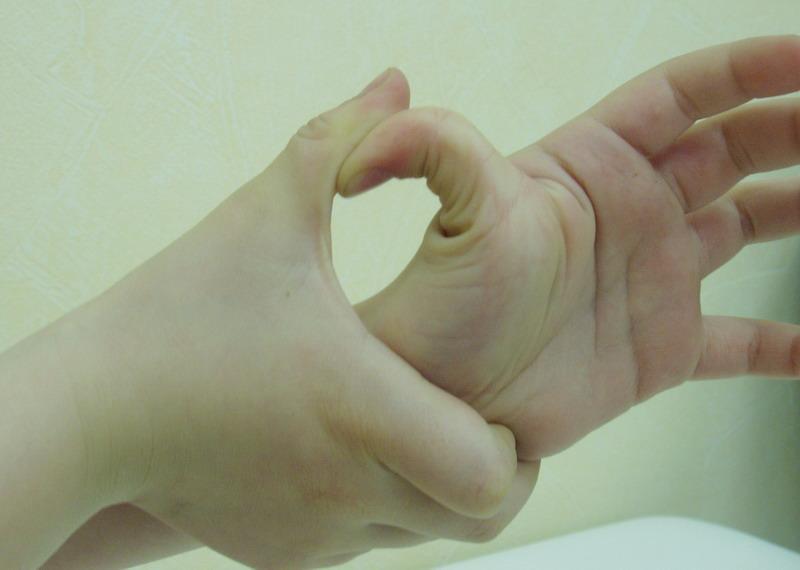 Симптомы и лечение дисплазии соединительной ткани у детей