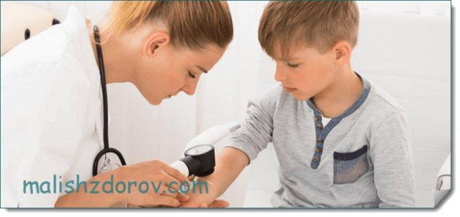 Контагиозный моллюск у взрослых. на лице. лечение. удаление. фото