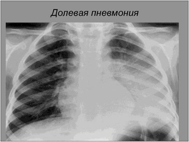 Описание и лечение пневмонии верхней доли легкого у взрослых и детей