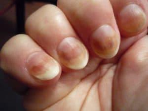 Цвет ногтей при сердечной недостаточности
