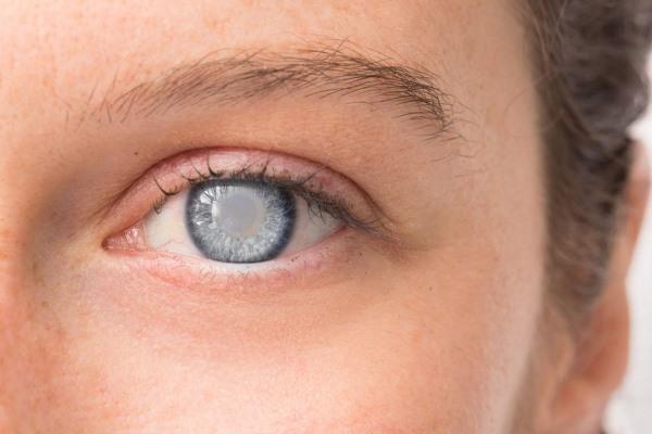 Лучшие противоглаукомные капли от глазного давления