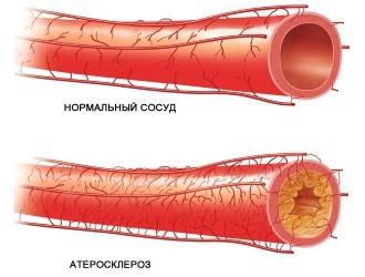 От чего помогает лефлобакт: инструкция по применению