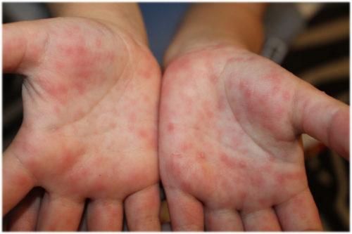 Е. комаровский: энтеровирусная инфекция - симптомы и лечение у детей