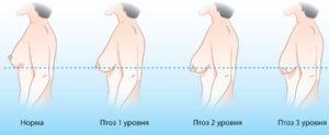 Обвисла грудь после родов: почему, что делать, как восстановить