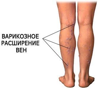 Слабость в ногах - симптомы, причины и лечение - лечение ног