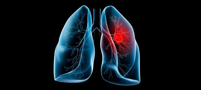 Как проявляется бронхит курильщика — симптомы и лечение