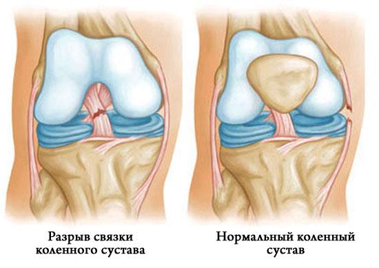 Растяжение связок колена — симптомы, лечение, первая помощь