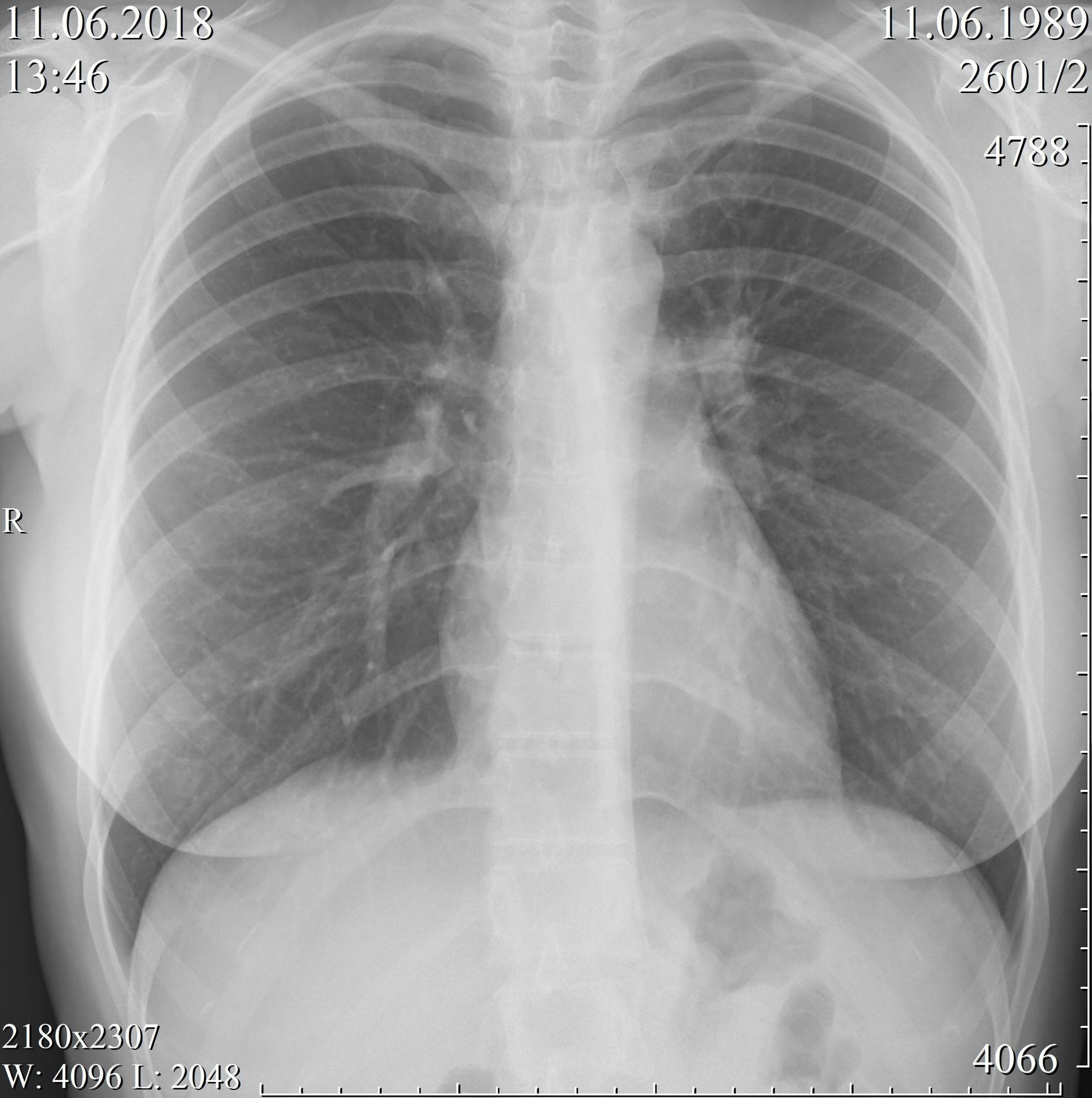 Как отличить туберкулез легких от пневмонии по признакам и результатам обследования?
