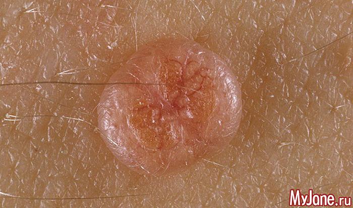 Контагиозный моллюск заболевание взрослых и детей с низким иммунитетом