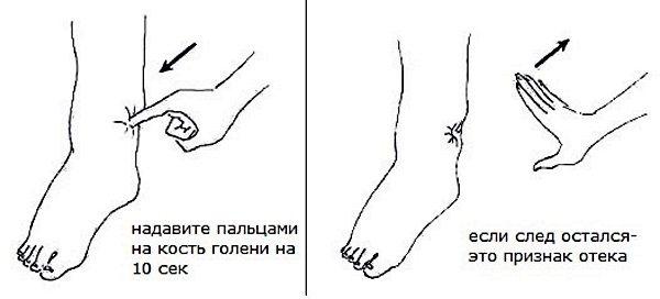 Лимфостаз нижних конечностей