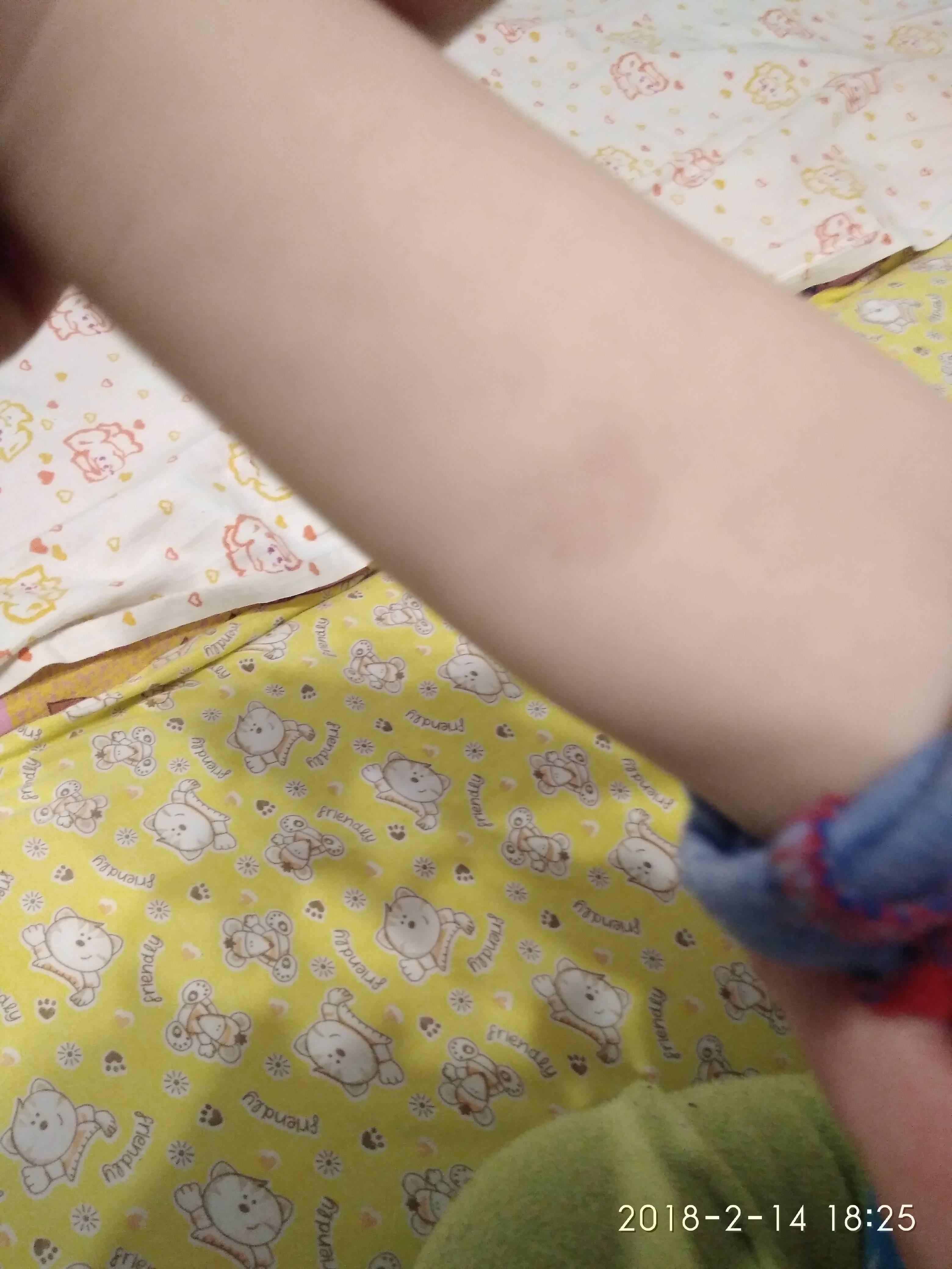 Манту....объясните запуталась... - нет папулы после манту - запись пользователя елена (lenusik2304) в сообществе детские болезни от года до трех в категории прививки - babyblog.ru