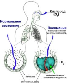 Какая температура при пневмонии у детей