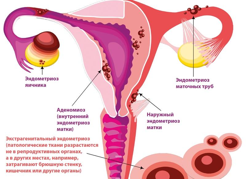 Жанин эндометриоз отзывы