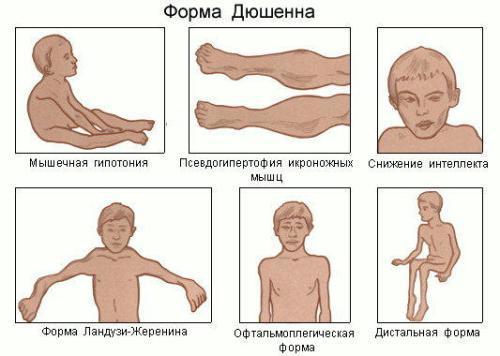 Симптомы мышечной дистрофии при разных формах заболевания