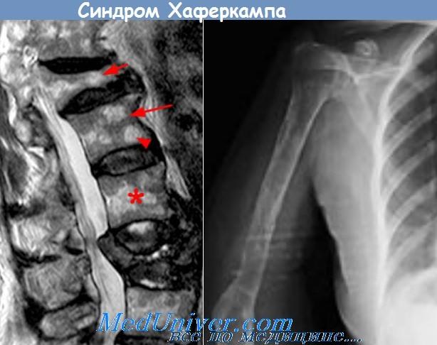 Синдром гийена-барре. что это, причины, симптомы, лечение, диагностика болезни