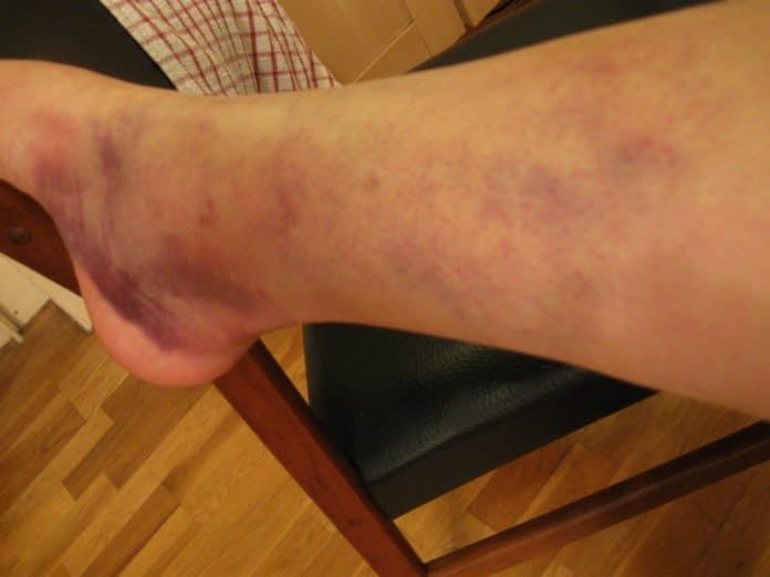 Почему появляется подкожная (внутренняя) гематома на ноге после ушиба и как лечить большой синяк от удара. на ноге синяк долго не проходит: причины, лечение
