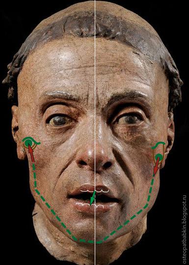 Синдром дисфункции внчс: характеристика патологии и методы предотвращения лицевого дефекта