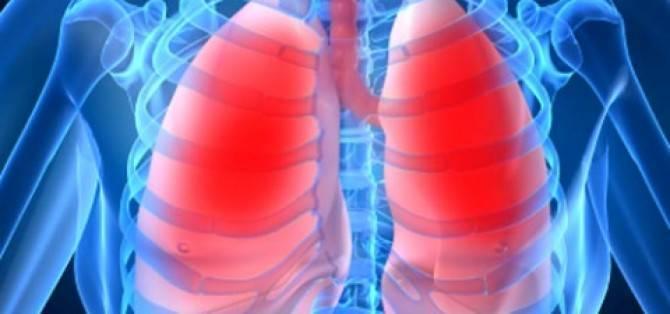 Кровохарканье: причины, диагностика и лечение