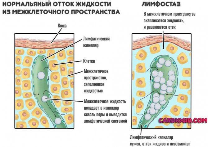 Лимфостаз нижних конечностей: лечение, симптомы, причины