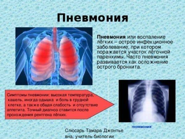 Бронхопневмония — википедия с видео // wiki 2