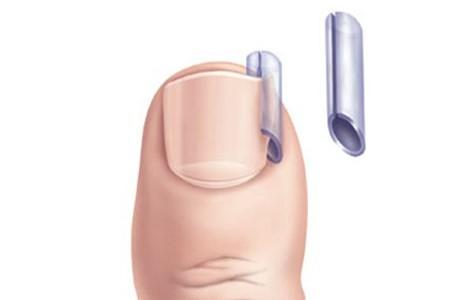 Вросший ноготь на большом пальце ноги: лечение в домашних условиях