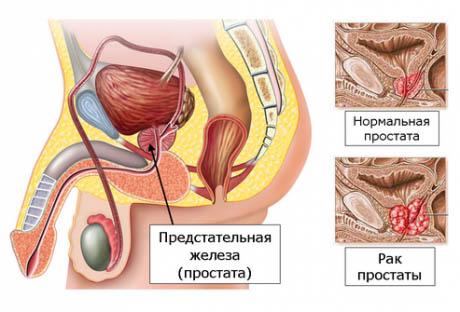 В чем разница между аденомой простаты и простатитом?