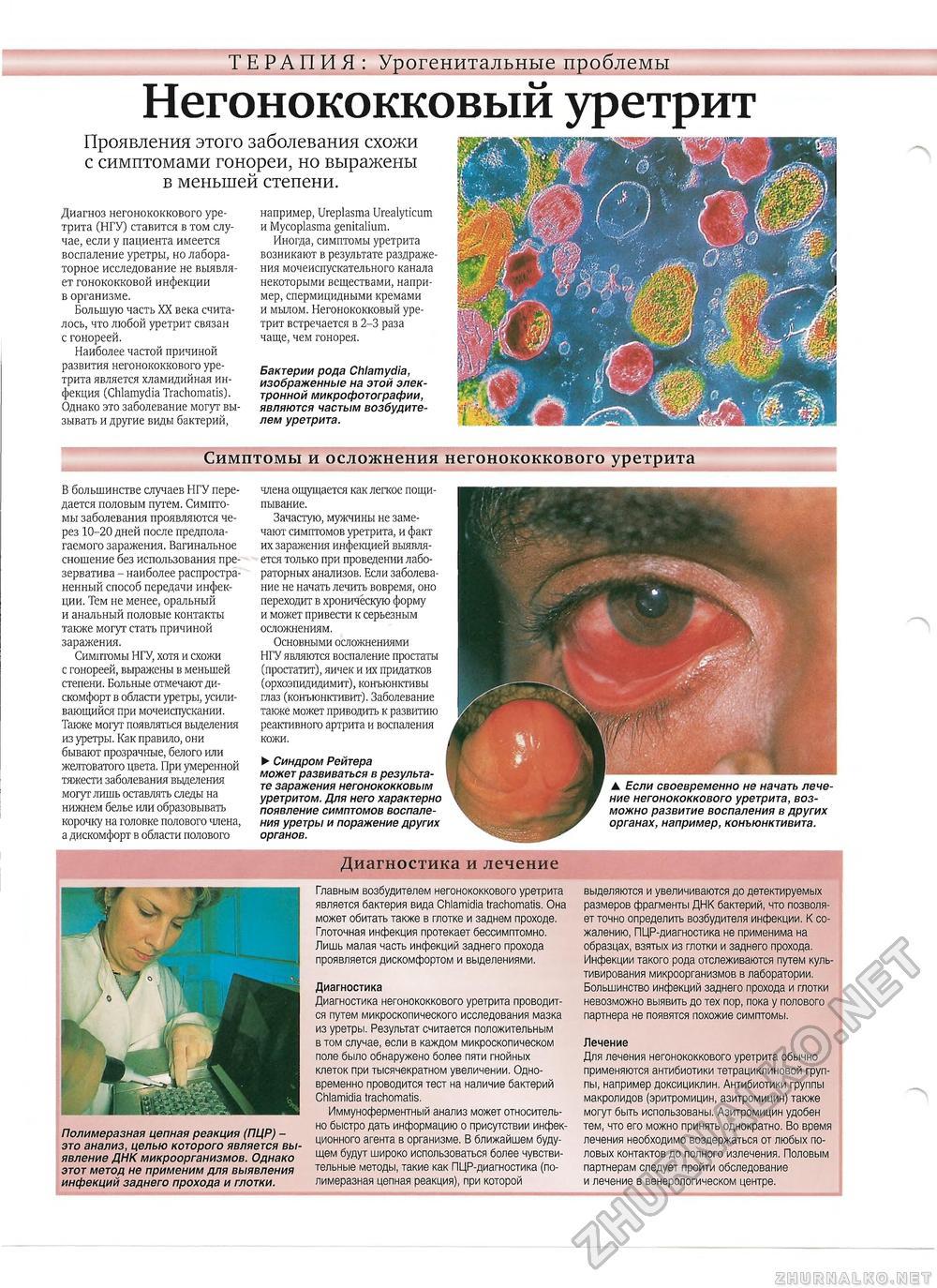 Гонорея.лечение гонореи