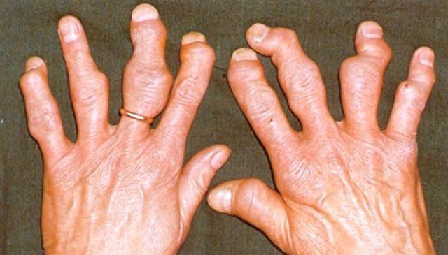 Подагрический артрит диета 6