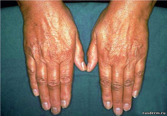 Болезнь аддисона: симптомы и лечение