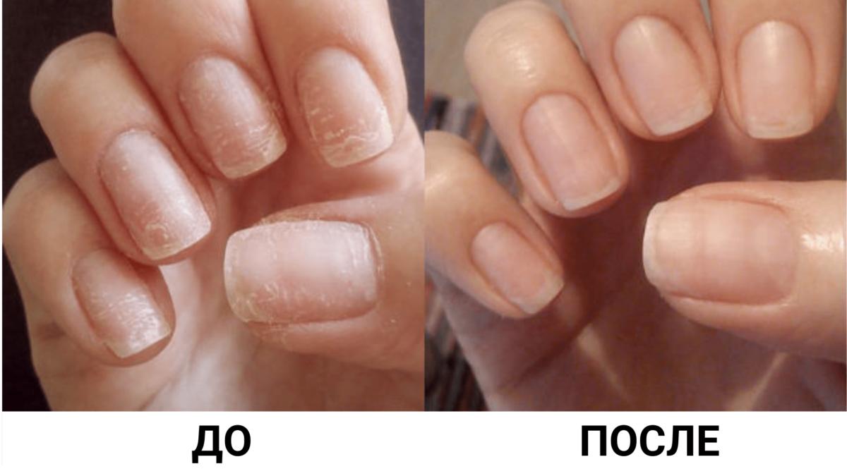 Хотите иметь красивые и здоровые ногти?