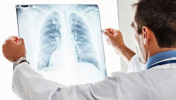 Вопрос: группа инвалидности при туберкулезе?