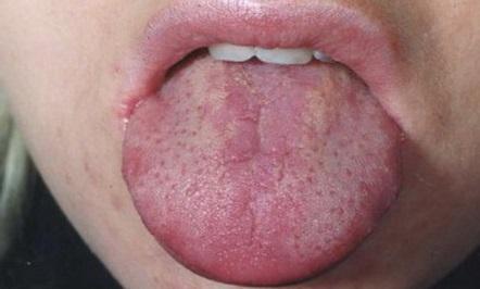 Глоссит: симптоматика, разновидности, лечение и профилактика воспаления языка