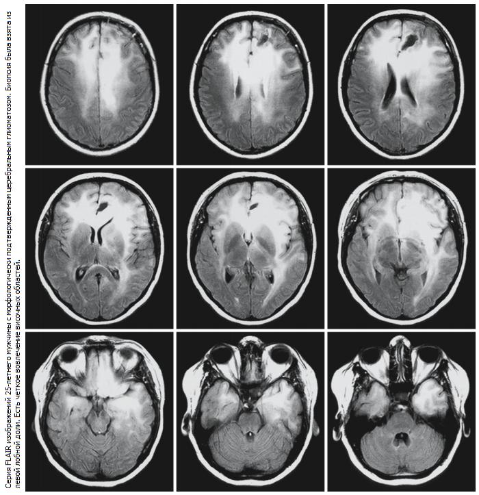 Симптомы глиоза головного мозга: его особенности и лечение