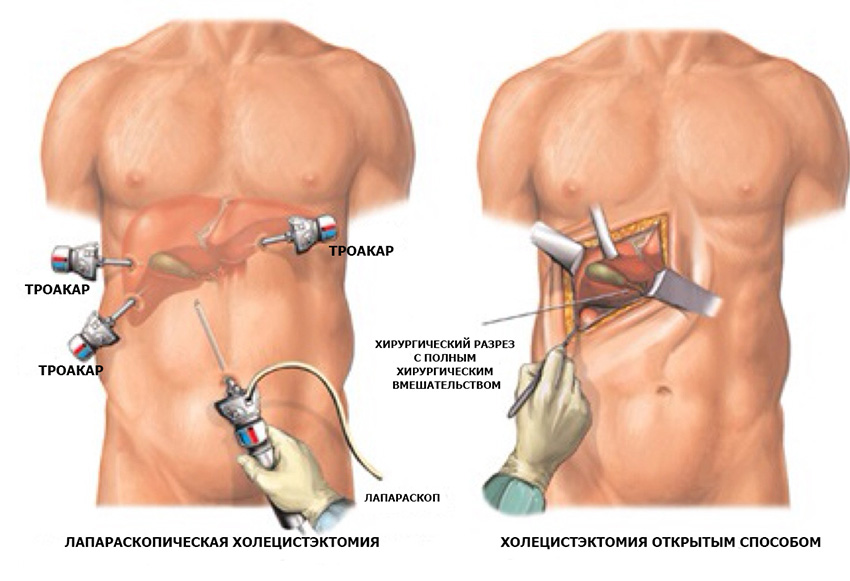 Лечение печени желчного и поджелудочной железы