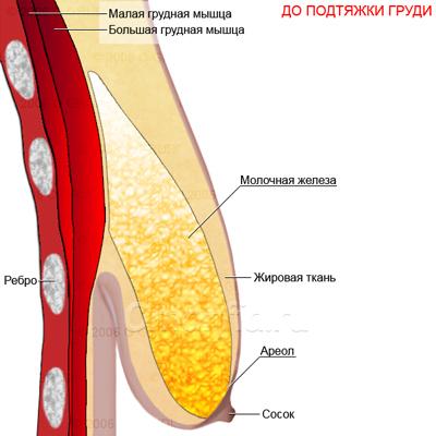 Птоз грудных (молочных) желез – причины и что делать