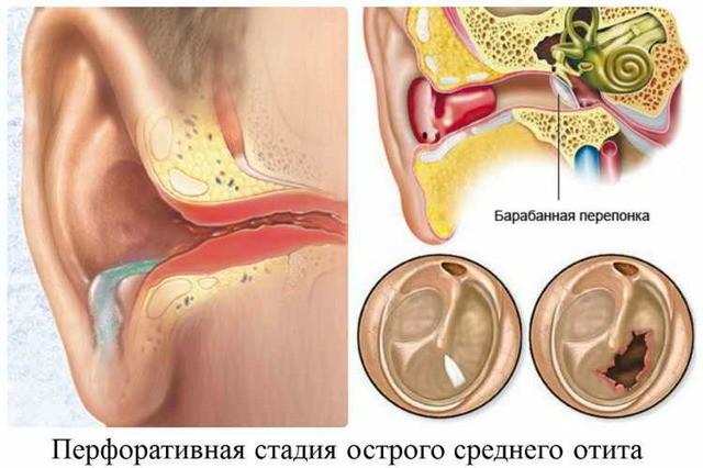 Как правильно закапывать левомицетиновый спирт в ухо