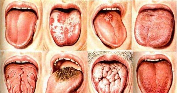 Болезни языка — симптомы и диагностика