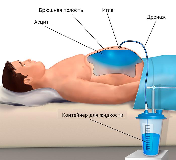 Пункция брюшной полости (лапароцентез). лапароцентез: показания и техника выполнения лапароцентез показания методика проведения